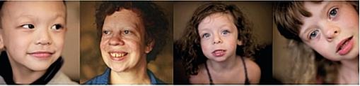 4 Bilder die 3 Kinder und eine Erwachsene Frau mit WBS zeigen